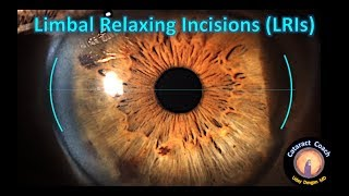 Basics of Limbal Relaxing Incisions (LRIs)