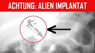Alien Implantat gefunden  Entführt von Außerirdischen?