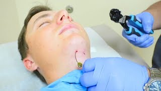 Hook In My NECK (Painful)