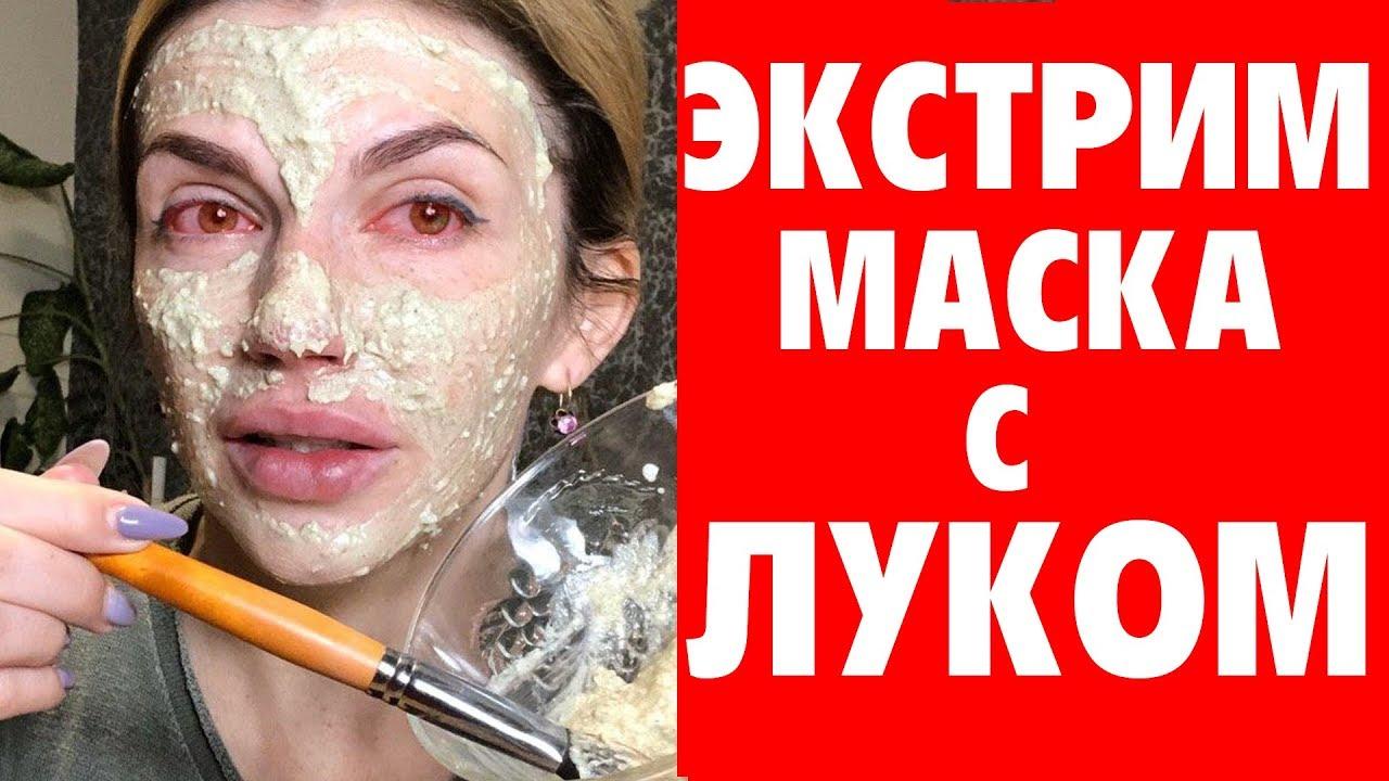 Плачу и омолаживаюсь. Как подтянуть кожу и убрать морщины при помощи лука. Маска для листинга лица