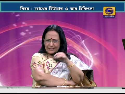 SUSWASTHA : Eye Tumour and its Treatment  (চোখের টিউমার ও তার চিকিৎসা)