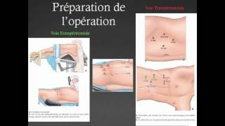 Bases anatomiques de la néphrectomie partielle
