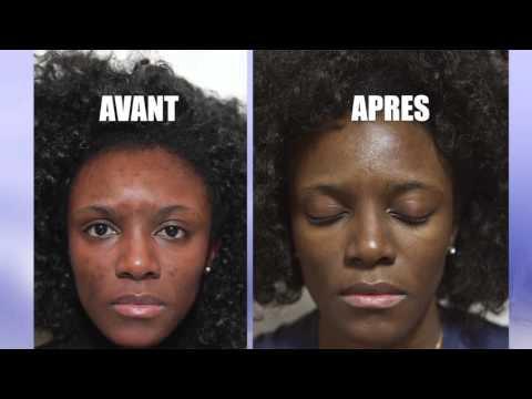 Comment éliminer les taches sur la peau. par DR OHEMBA WANDJE (Paris)