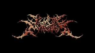 Severe Metastasis-Hanged In A Barbwire