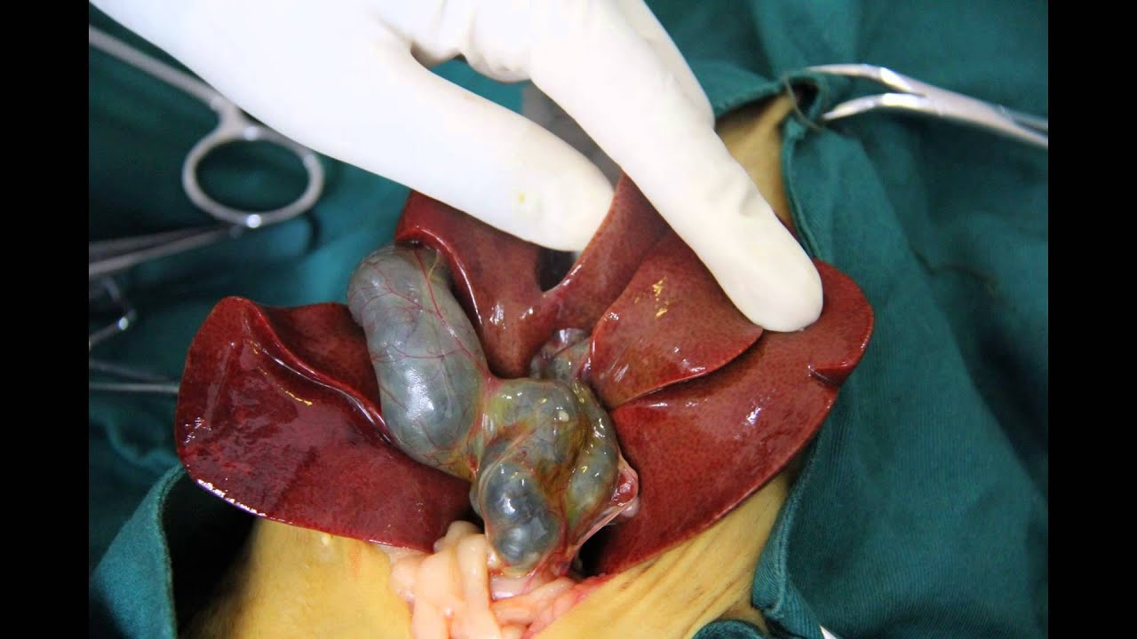 case study of bile duct obstruction - youtube, Skeleton
