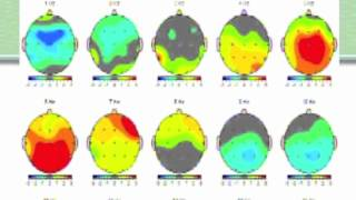 Becky Bingham: Brain maps, Part 2 The QEEG report
