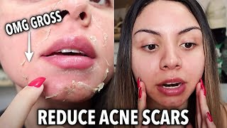 Chemical Peel Before and After Vlog 2 | Full Process | VI peel