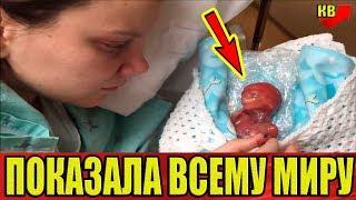 Он родился на 18 ой неделе. Мать показала его всему миру!