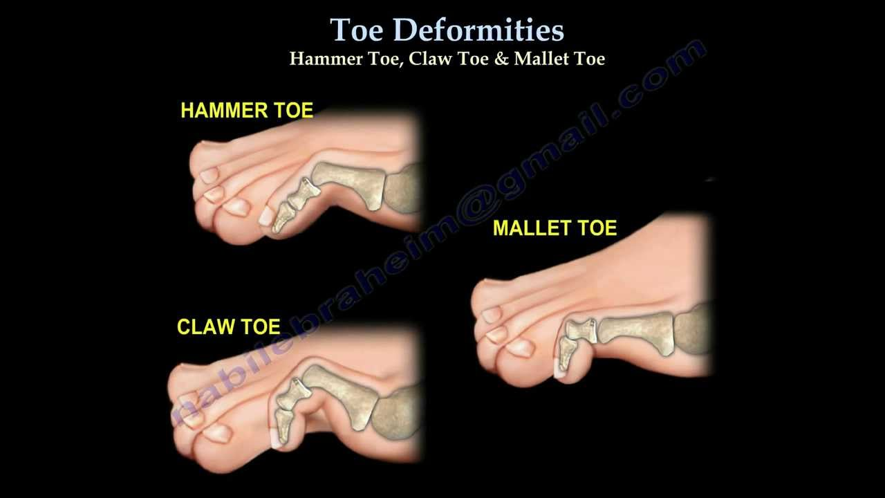 Toe Deformities Hammer, Claw & Mallet Toes - Everything ...