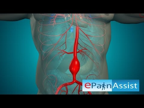Open Abdominal Aortic and Endovascular Aneurysm Repair Surgery
