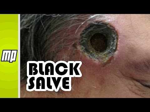 Black Salve - Cancer 'Treatment' That Burns Holes in You!