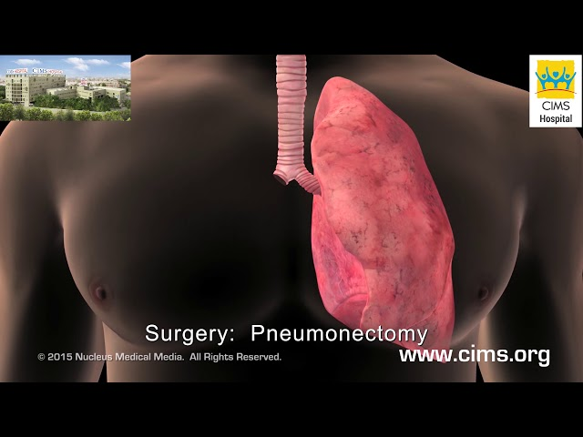 Treatment for Lung Cancer (Hindi) - CIMS Hospital