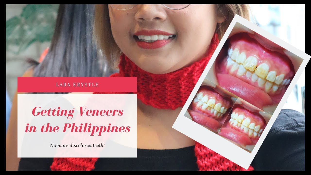Getting Veneers In the Philippines