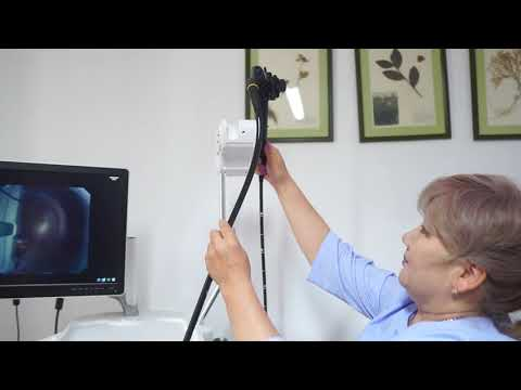 Гастроскопия (ЭГДС, эзофагогастродуоденоскопия)