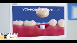 видео 3D Цифровая Стоматология