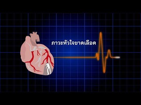ภาวะหัวใจขาดเลือด