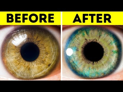 Ways to naturally change your eye color