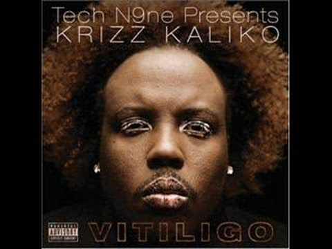 Krizz Kaliko Vitiligo full song
