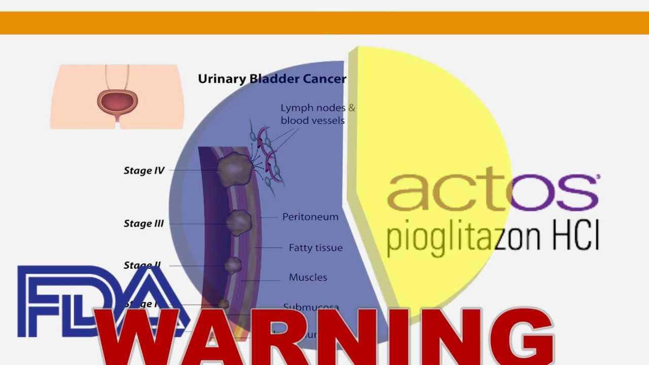 Actos Pioglitazone Bladder Cancer