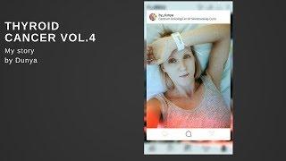 vol.4 #Thyroidcancer | Рак щитовидной железы |Терапия радиоактивным йодом the end
