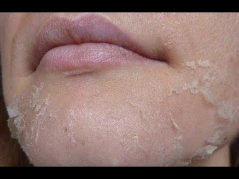 ★ Пилинг-скатка с хлористым кальцием – идеальный способ обновления кожи. Омертвевшие клетки отпадут
