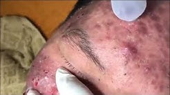 hqdefault - When Is Acne Severe