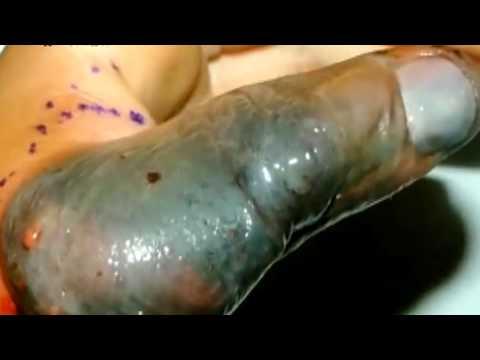 Блохи: укусы блох, как избавиться средствами — фото на