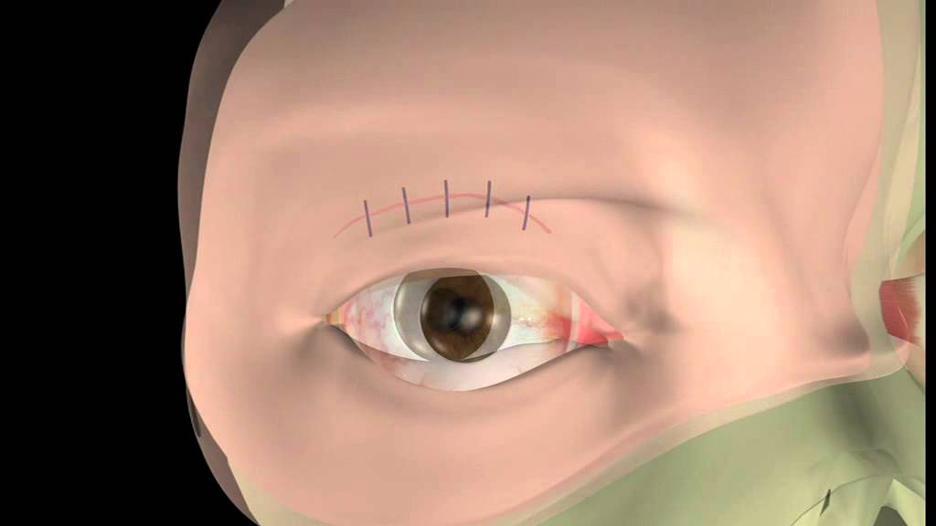 Thyroid Eye Disease 14 Lid Surgery The Operation Youtube