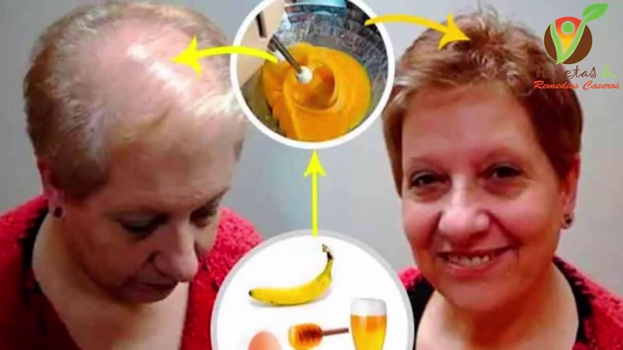 Esta mujer detuvo la caída del pelo en solo 1 mes, lo hizo crecer rapido con esta receta de 2 minuto
