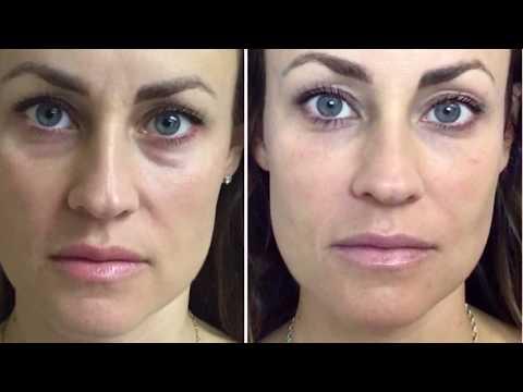 Restylane Dermal Filler Under Eyes~ Tear Trough