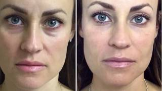 Restylane Dermal Filler Under Eyes~ Tear Trough(, 2018-05-04T03:22:31.000Z)