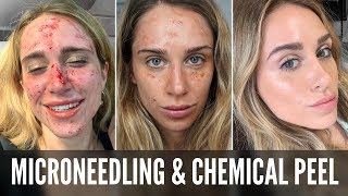 MICRONEEDLING & CHEMICAL PEEL EXPERIENCE | AFTER CARE | BEFORE & AFTER | FOREVER YOUNG? | KOKOBEAUTE