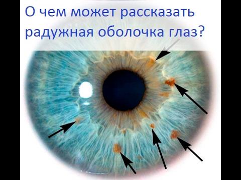 О чем может рассказать радужная оболочка глаз? - Все обо всем