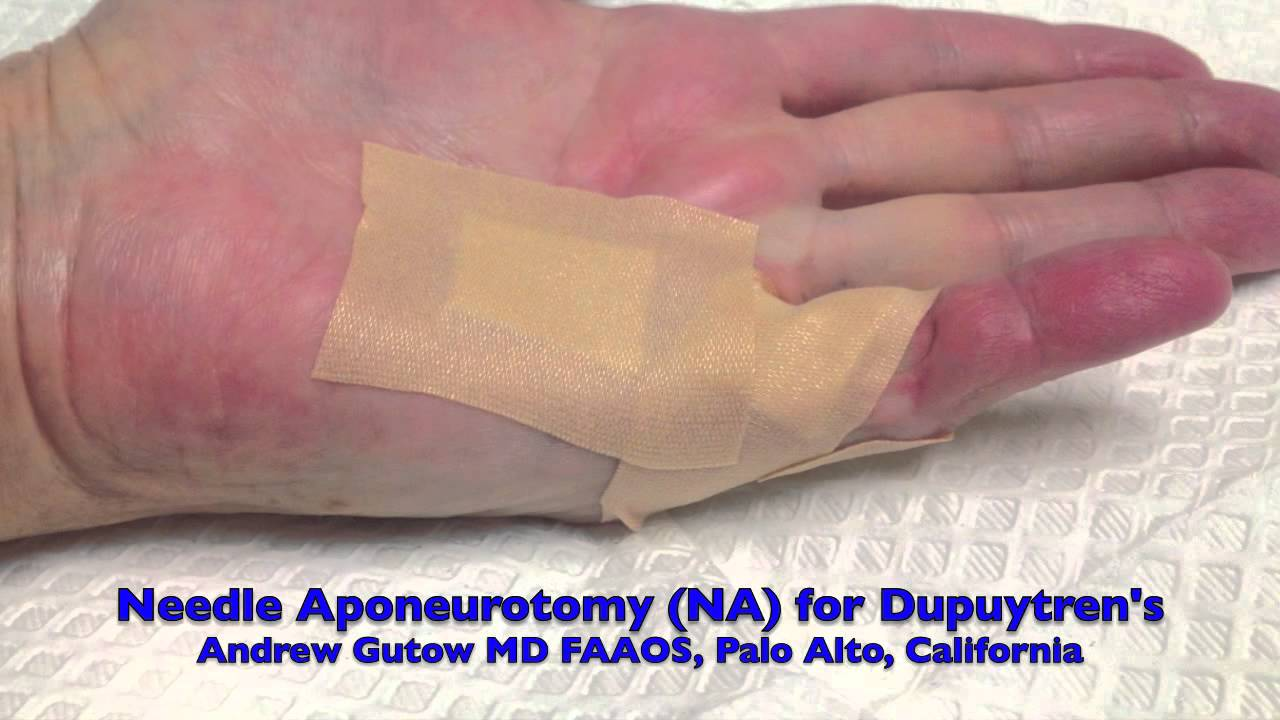Office Treatment of Dupuytren's Contracture Needle ...