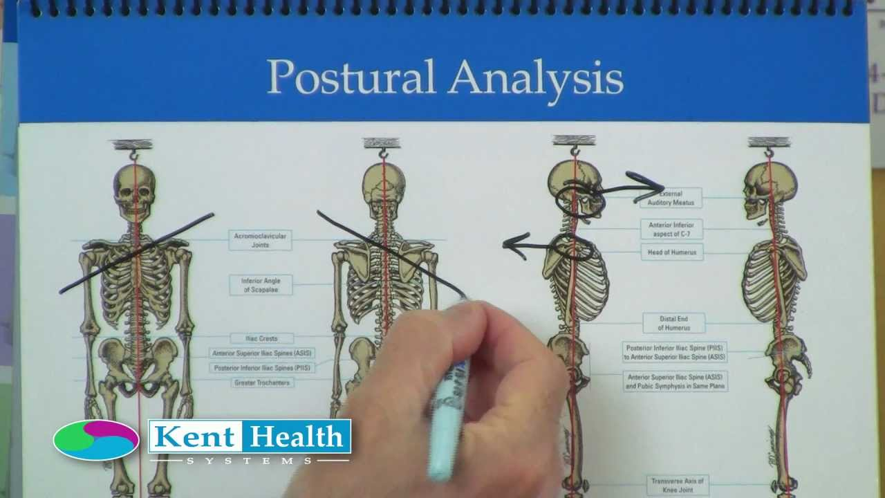 postural analysis posture assessment kent flip chart youtube