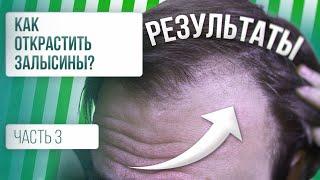 Как остановить выпадение волос РЕЗУЛЬТАТЫ Часть 3