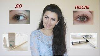 Длинные ресницы КАК? Xlash vs Careprost(Всем привет! Сегодня обещанное видео-отчет..... Xlash http://krasotka-shop.in.ua/products/sredstvo-dlya-rosta-resnits-xlash Карепрост http://krasotka-s..., 2015-06-02T17:14:45.000Z)