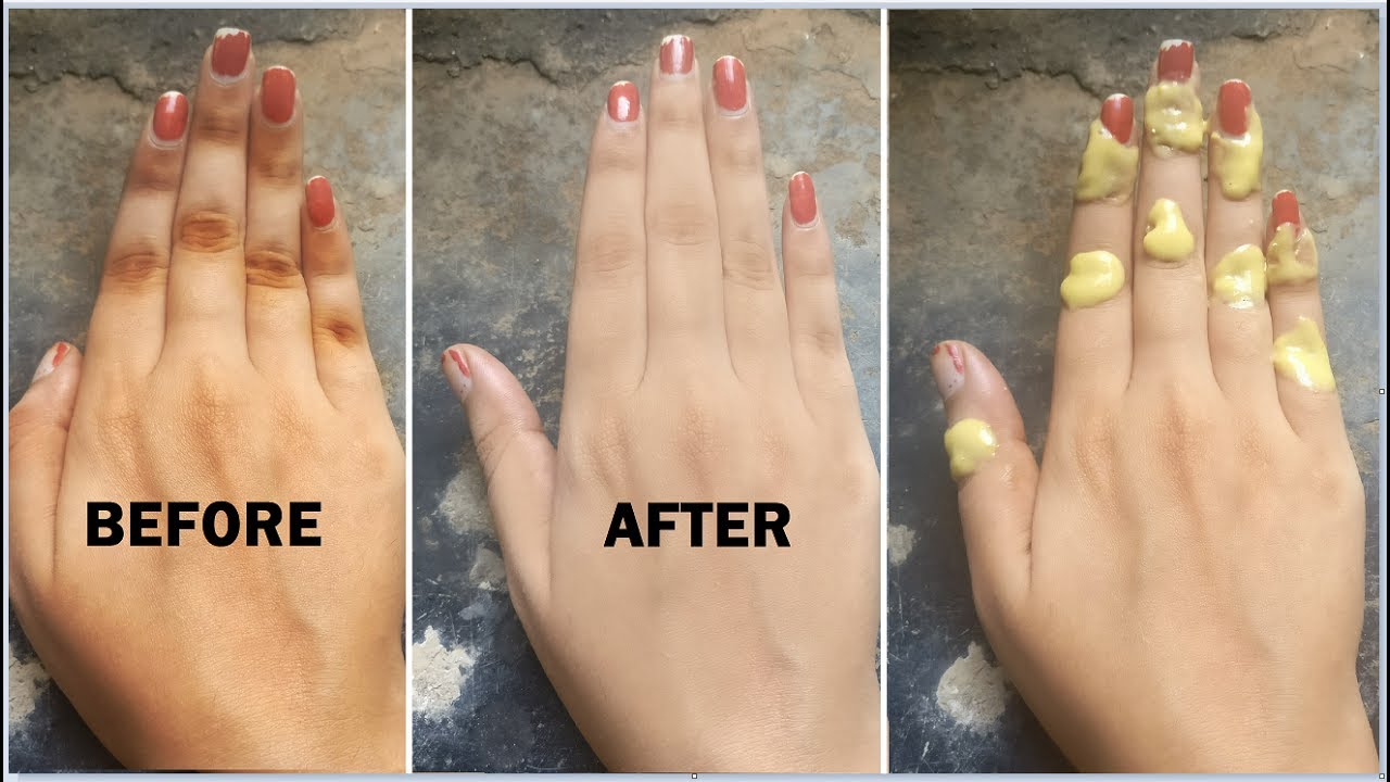 How to remove black finger joints