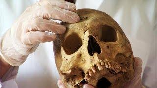 The Bones Under Gacy's House
