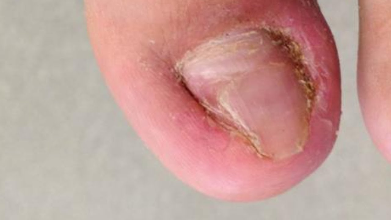 how to get a deep ingrown toenail out