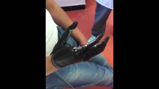Prothèse combinée coude-main