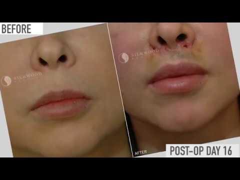 Lip Lift | Upper Lip Shortening Sydney | Lip Lift Surgery