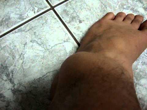 Inchado dor tornozelo sem