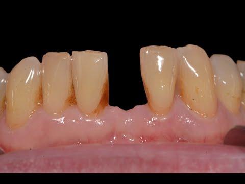 lower-dental-implant-tooth-insertion-|-implant-specialiast-team-|-milton,-oakville,-burlington