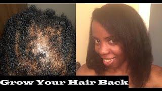 Home Remedies Reverse Hair Loss