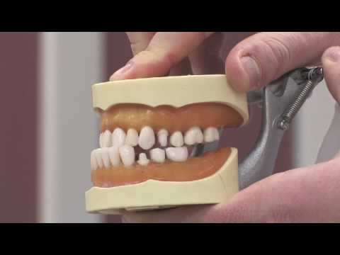 How long should it take to brush teeth with braces