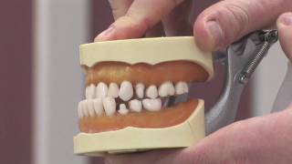 Braces tooth Adult