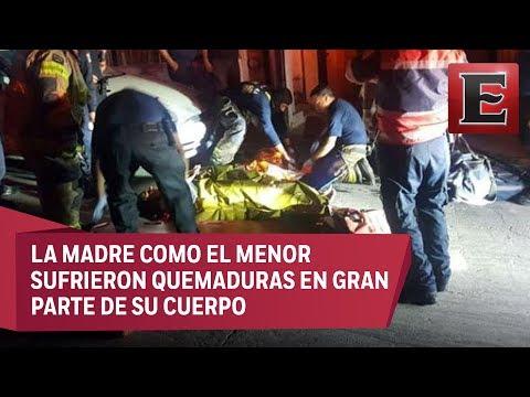 Mujer y su hijo quemados por joven en Tijuana