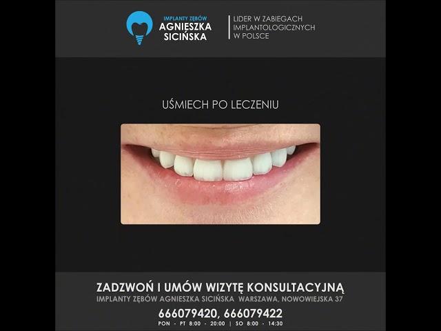 Uśmiechy po leczeniu metodą Nowe Zęby w Jeden Dzień.