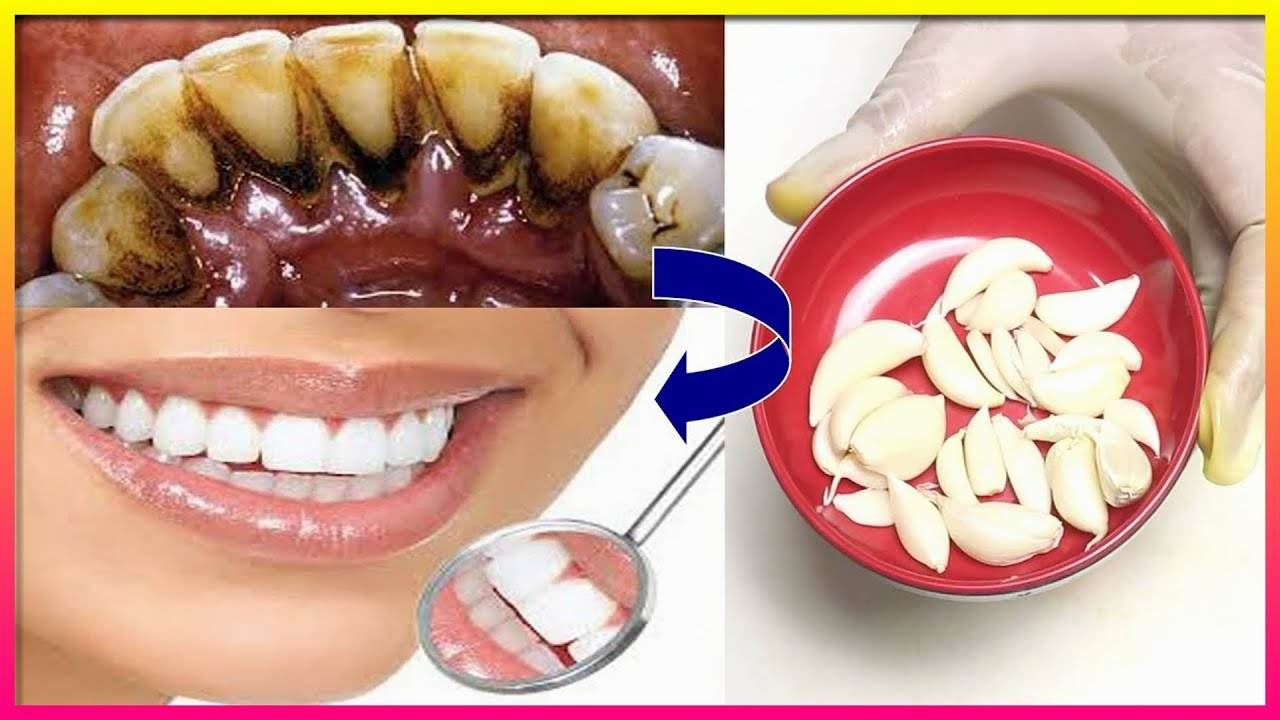 How to naturally whiten your yellow teeth at home